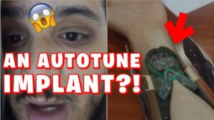 Is The Auto Tune Implant Real